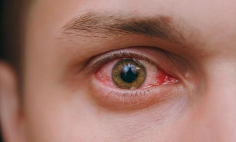 Cuidado! Casos de conjuntivite aumentam na temporada de gripe