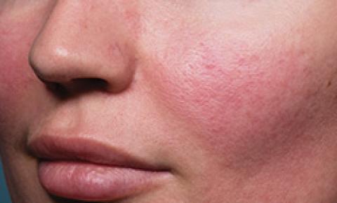 Mapeamento digital da pele com inteligência artificial para acompanhamento de melanoma, lesões e hiperpigmentação